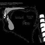 Congenital Aglossia