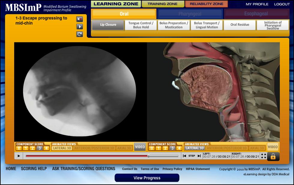 MBSImP Oral Dysphagia