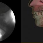 MBSImP Laryngeal Penetration