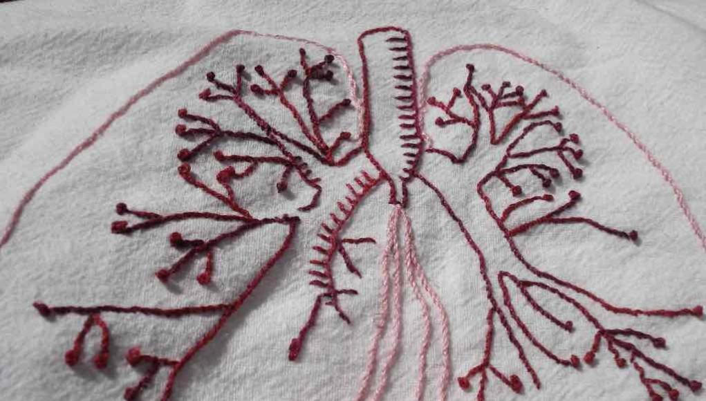 Dysphagia-Lungs