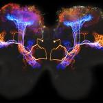 Brain Electricity Dysphagia