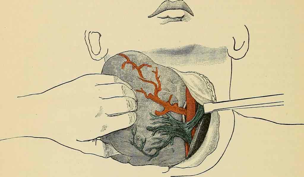 Laryngectomy Dysphagia
