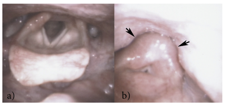 figure-2-pharyngeal-squeeze
