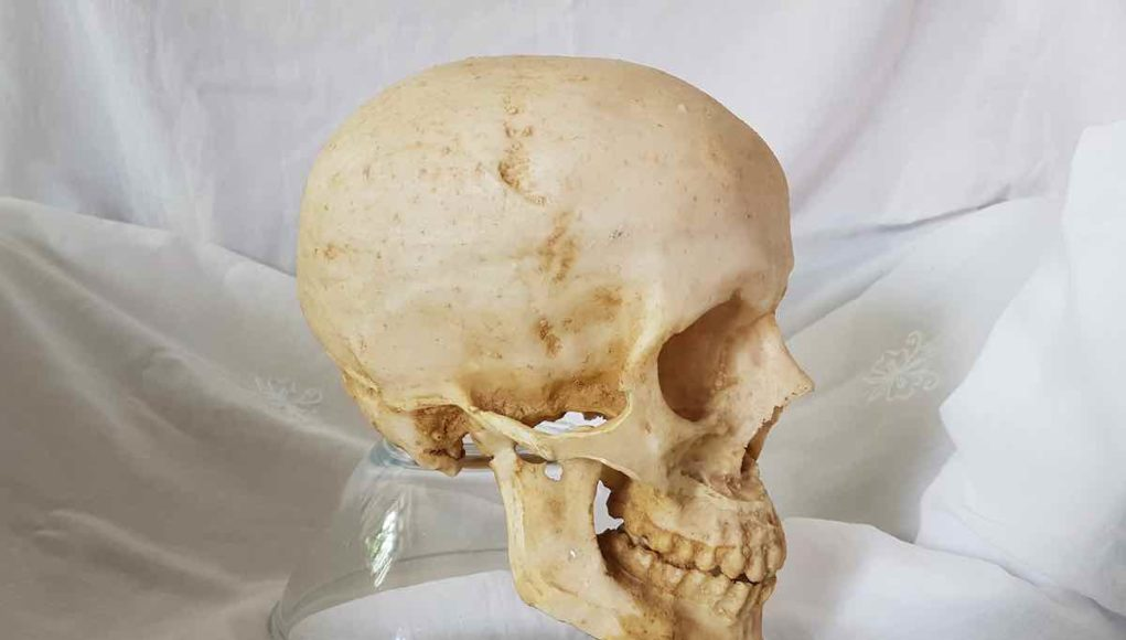 Dysphagia and anatomy of jaw