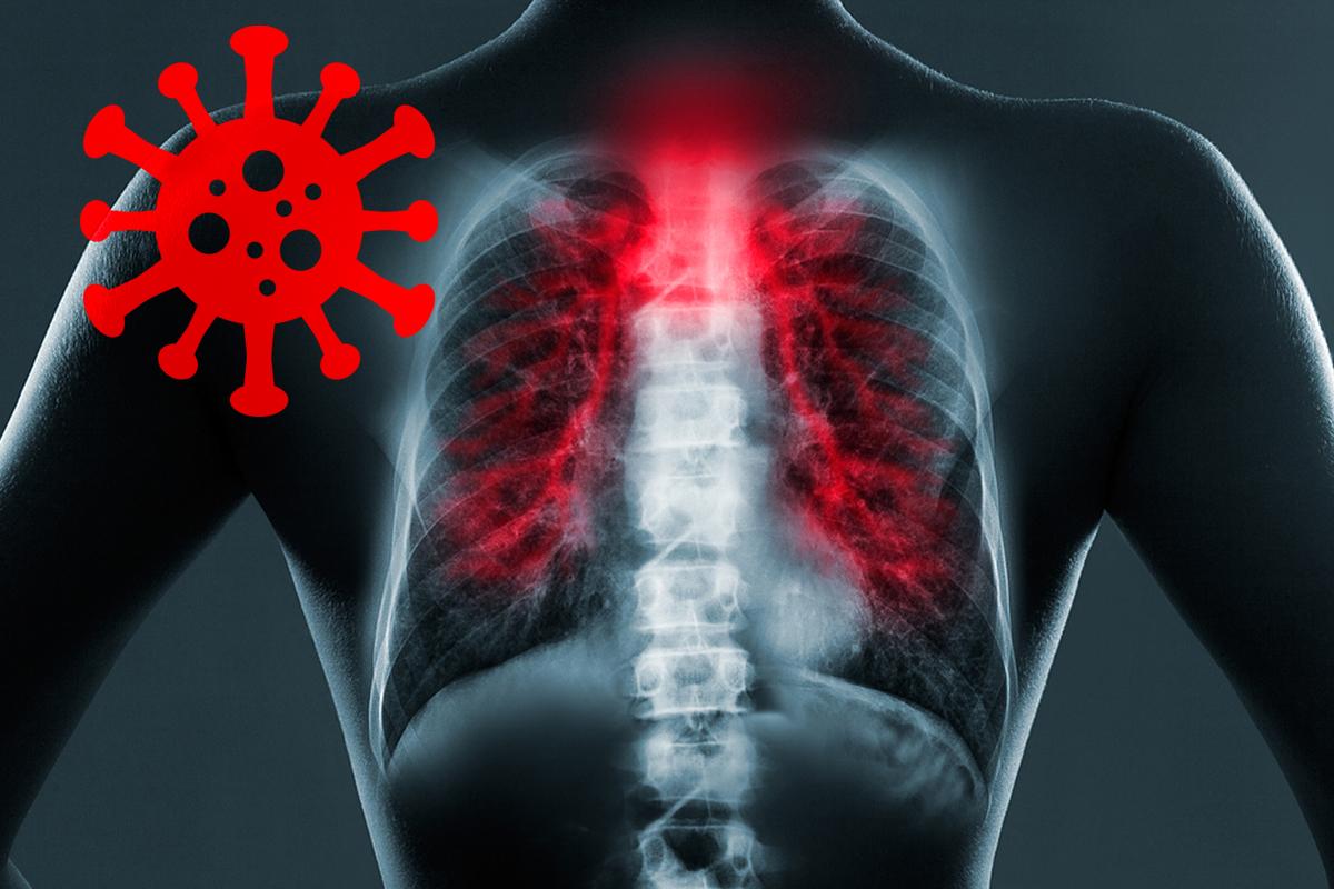 Dysphagia-Covid 19 Lungs